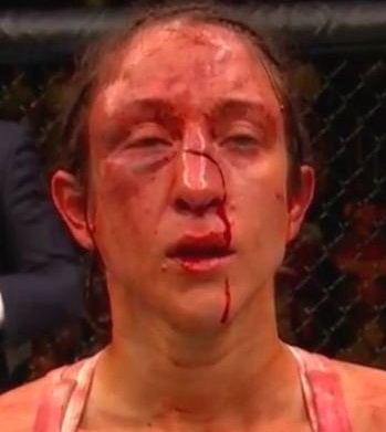 Jessica-Penne-nose-cut-ufc