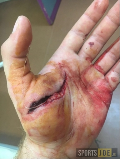 PIC: Connacht flanker Jake Heenan suffers gruesome hand